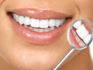 bijeli zubi54